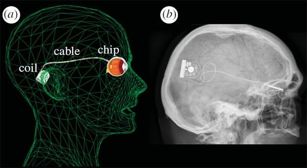 Microchip implant lets blind patients see light, skip the glasses