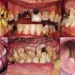 Meth, drug use, meth use, meth mouth, drug tests