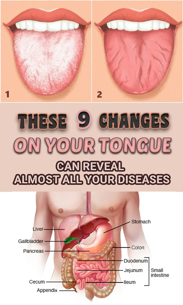 THESE 9 MODIFICATIONS ON YOUR TONGUE CAN SHOW ALL YOUR DISEASES♫