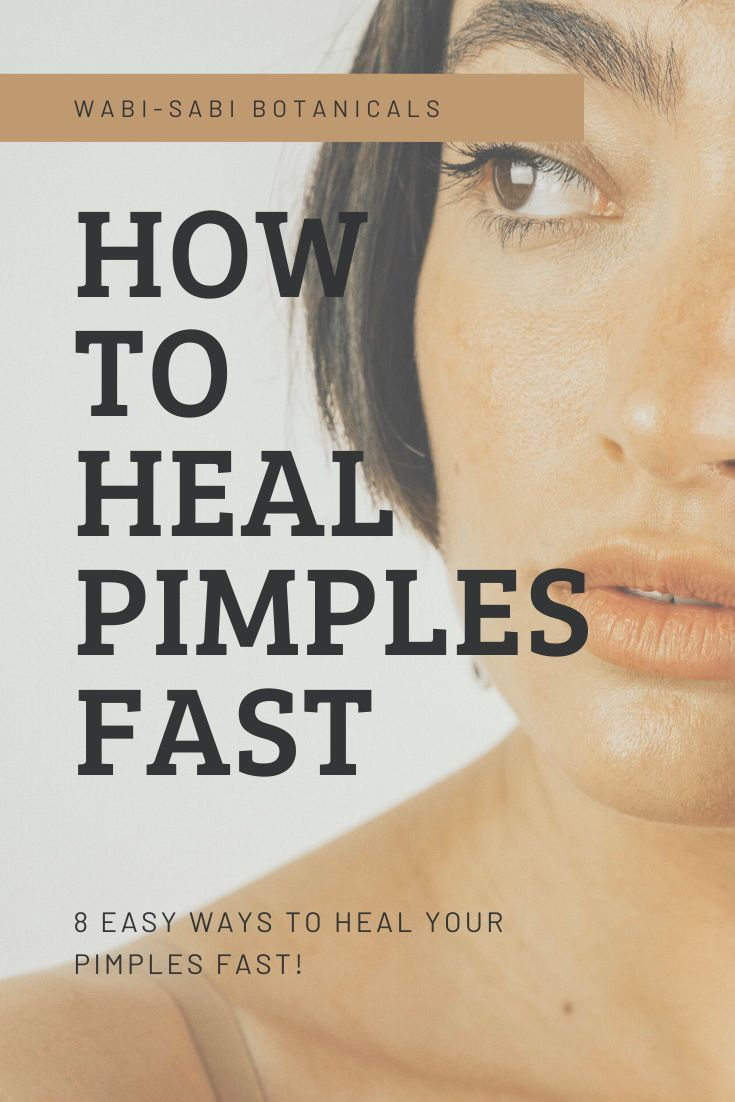 8 Easy & Effective Ways To Heal Pimples Fast | Pimples