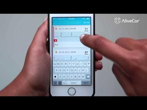 Apple Watch: AliveCor stellt EKG-Armband vor - https://apfeleimer.de/2015/10/apple-watch-alivecor-stellt-ekg-armband-vor - Über das neue EKG-Messungskonzept der Apple Watch habe ich ja schon letzte Woche ausführlich berichtet. Zwei Ärzte stellten im Zuge eines Medizinerkongresses eine Spezial-Version der Apple Watch vor, mit der eine mobile EKG-Messung möglich ist. In dem Vorstellungsvideo war bereits zu erkennen, da...