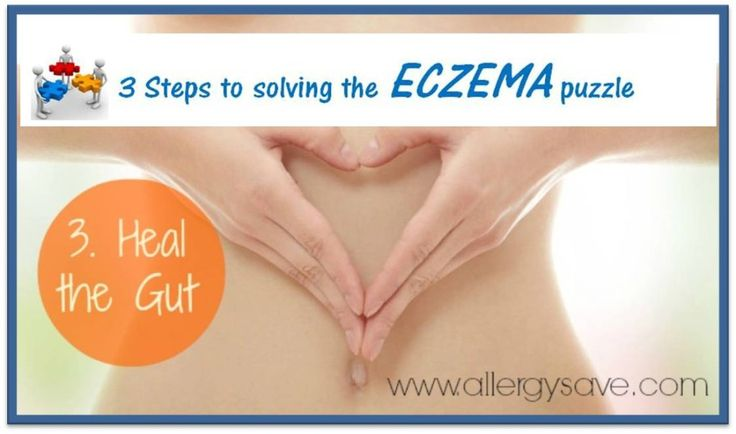 Heal the gut! Solving the Eczema puzzle