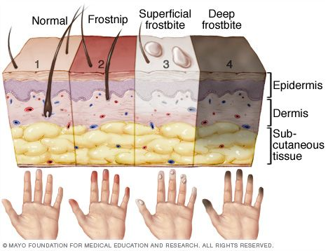 graphic of signs of frostbite