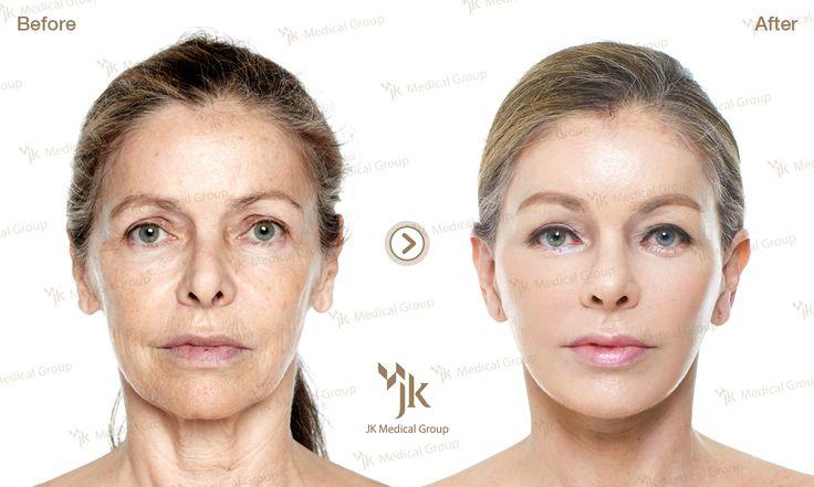 Korea plastic surgery _anti-aging before&after _JK plastic surgery. Full face Lifting