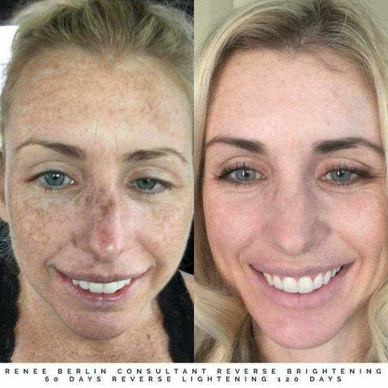 uneven skin tone on face