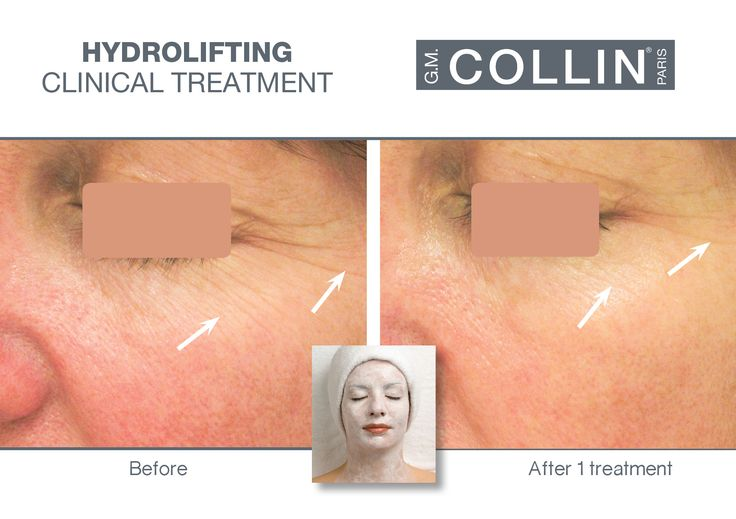 G.M. Collin Hydrolifting - Before & After picture #beauty #cosmetics #skincare #clinical #clinicaltreatment #spa #spatreatment #antiaging #hydration #finelines #wrinkles #Hydrolifting #gmcollin #gmcollinparis #gmcollinskincare