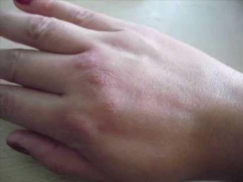 El tratamiento de la uña encarnada al niño de la casa