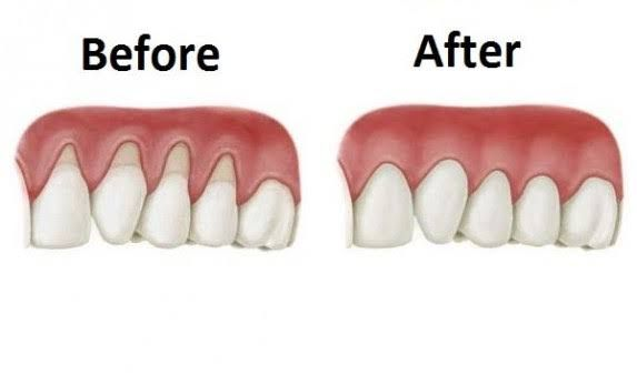 The situation of receding gums happens when the tissue of the gum around the teeth corrodes and it looks like your gums recede backwards. Then a large surface of the teeth is exposed and more visible. When the gums go back, the space between the gum line and the teeth rises.