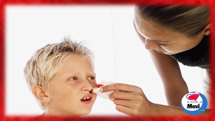 ¿Porque sangra la nariz? - Hemorragia nasal remedios caseros - Epistaxis...
