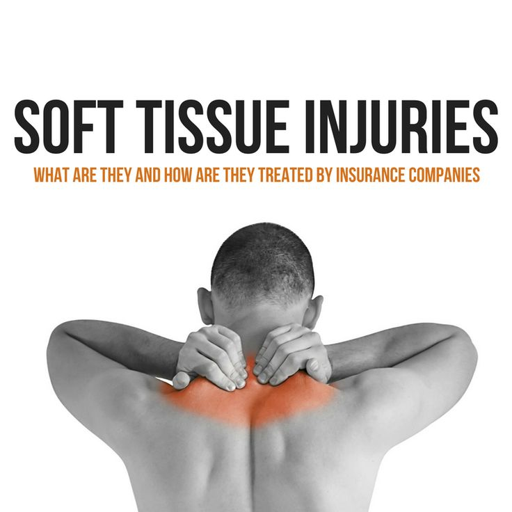 What are soft tissue injuries and how are they treated by insurance companies?