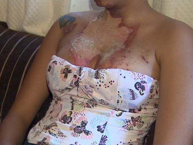 Jovem de 18 anos tem rosto atingido por rojão em rodeio de Sertãozinho   Ela teve queimaduras de 2º grau na face no colo e registrou ocorrência. Rodeio diz que ofereceu auxílio à vítima e vai evitar novos casos como este. http://mmanchete.blogspot.com.br/2013/07/jovem-de-18-anos-tem-rosto-atingido-por.html#.Udru0PlQGSo