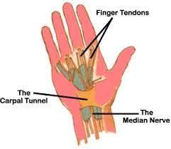 Repetitive Strain Injury Syndrome Regular use of particular muscles, as well as poor posture like Carpal Tunnel Syndrome; Tennis Elbow;Trigger Finger;Blackberry Thumb.