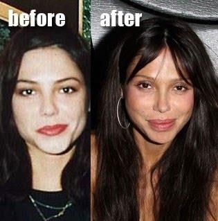 Oksana Grigorieva Plastic Surgery   Cosmetic Plastic Surgery