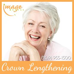 209-955-1500 | Image Dental in Stockton, CA offers dental crown lengthening treatment.  Learn more about crown lengthening: http://www.myimagedental.com/services/periodontal-disease-treatment/crown-lengthening  Request an appointment here: http://www.myimagedental.com/request-appointment  3453 Brookside Road, Suite A Stockton, CA 95219  #crownlengthening #stockton #ca #imagedental