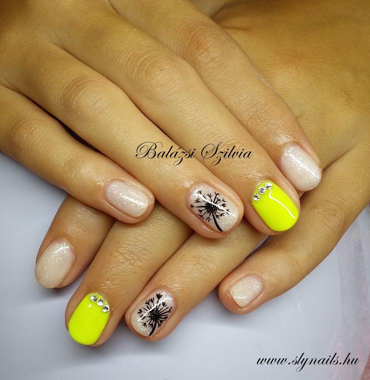 sárga és fehér köröm