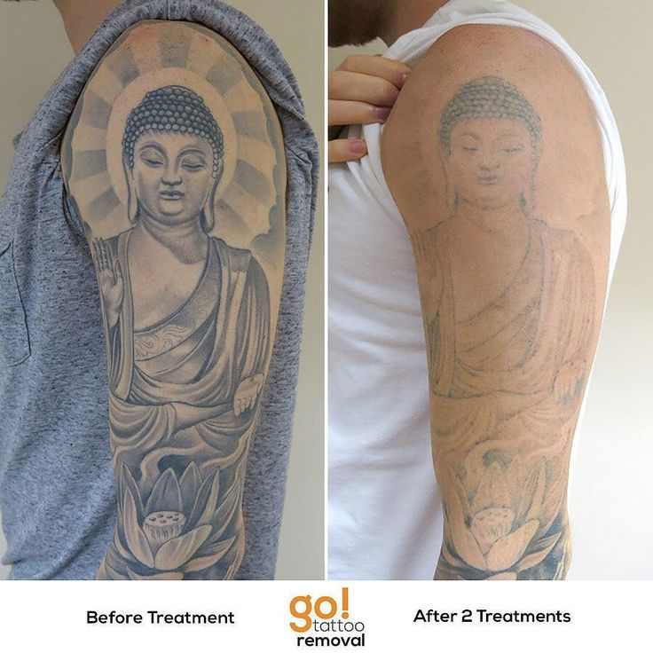701 best images about tattoo removal in progress on for Best soap to clean tattoo