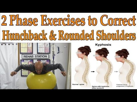 2 Phase Exercises to Correct Hunchback, Kyphosis, Rounded Shoulders - Dr Mandell - YouTube