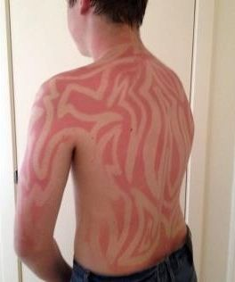 Sunburn Art is a Real Thing, and It's Glorious (9 Pics)