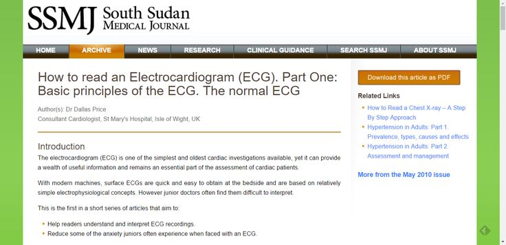 How to read an Electrocardiogram (ECG). Part One: Basic principles of the ECG. The normal ECG