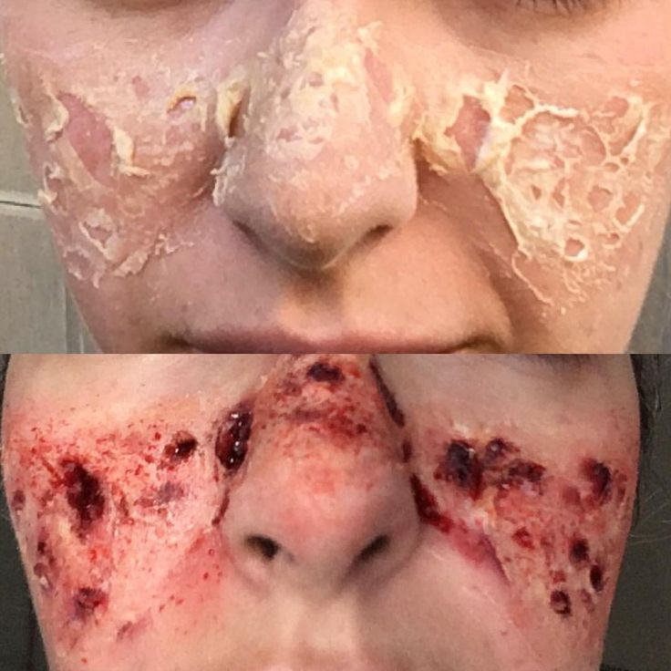 makeup. fx. wound. burnsun. latex. blood