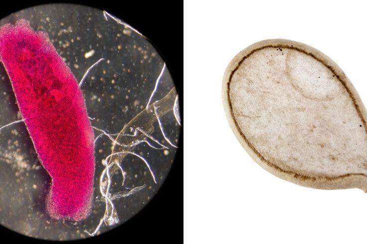 Organizme knibždančių parazitų atsikratysite vos viena natūralia priemone
