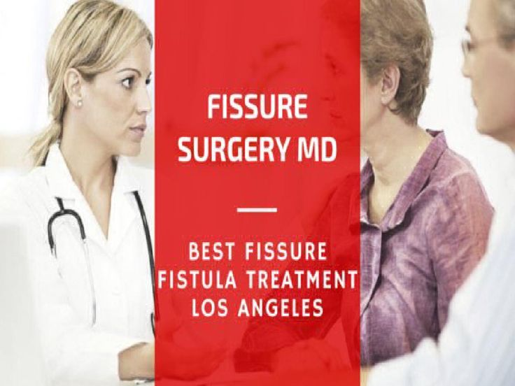What is the Best Anal Fissure Treatment?