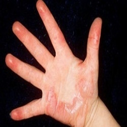 Top Most Home Remedies For Burns - Natural Treatments & Cure For Burns   Ayurvedic Natural Cure Supplements