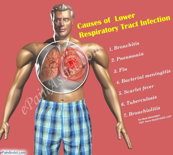 Causes of Lower Respiratory Tract Infection