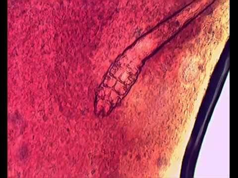 A Live Female Demodex Under Microscope