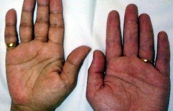 INSUFFICIENZA SURRENALICA PRIMARIA = IPOSURRENALISMO PRIMITIVO= CRONICO= MALATTIA DI ADDISON Il Morbo di Addison è un'ipofunzione insidiosa e generalmente progressiva della corteccia surrenalica. Determina l'insorgenza di vari sintomi, tra cui l'ipotensione e l'iperpigmentazione e può portare a una crisi surrenalica, con collasso cardiovascolare. La diagnosi è clinica e caratterizzata da elevati livelli di ACTH e bassi livelli di cortisolo.