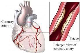 el vaso coronario