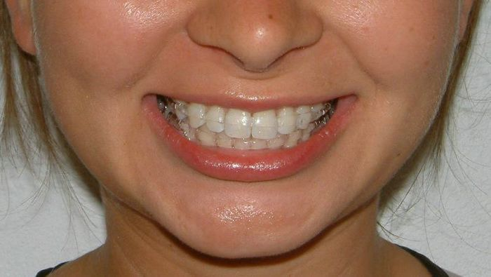 Clear Braces Cost For Kids