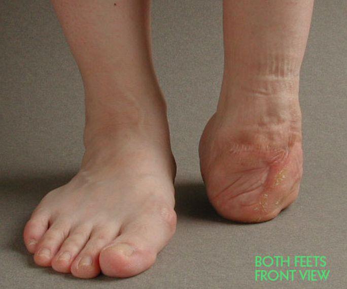 Rabbit Leg Prothesis – 290100