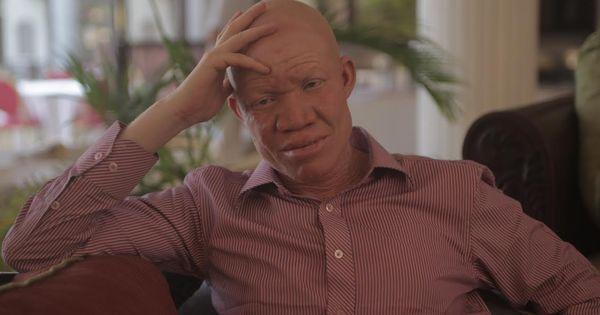 {AP:Identité} Alors que l'approche des élections fait craindre une recrudescence des crimes, Josephat Torner mène campagne contre les fausses croyances dont sont victimes les albinos.