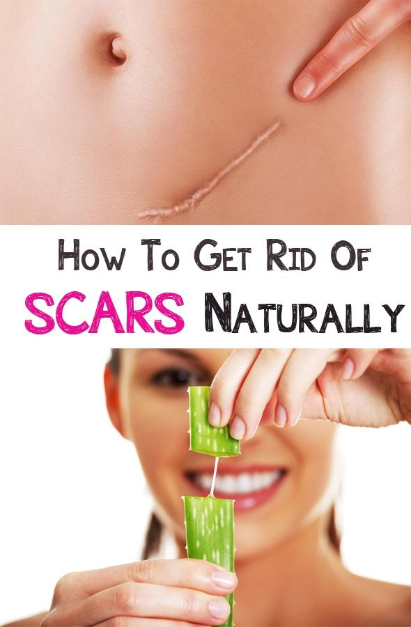How to get rid of scars naturally