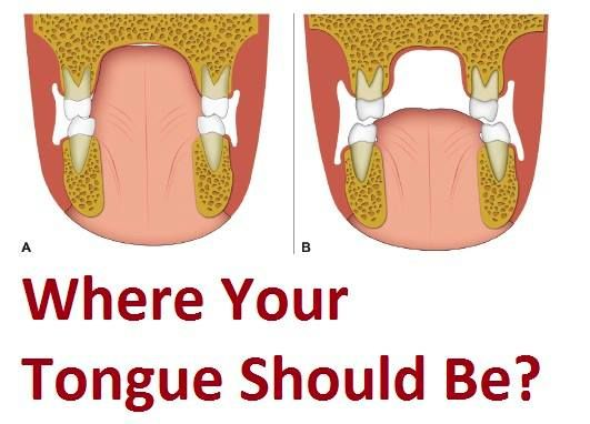 "I preach about tongue on the roof posture but are you doing it correctly? ""tongue on the roof"" but there's more to it, for great facial change results. If you are part of my membe…"