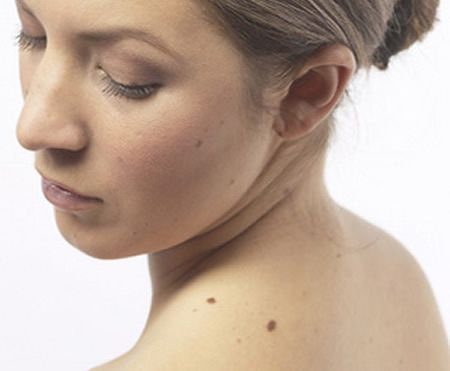 Best Skills Help You Reduce Freckles