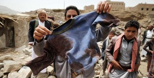 Washington's Blog Wed, 13 Apr 2016 03:37 UTC  The United States is a major backer and supporter of the Saudi-led war against Yemen. The U.S. supplies the weapons, and provides most of the ta… https://winstonclose.me/2016/04/14/u-s-saudis-committing-absolutely-horrific-war-crimes-in-yemen-written-by-washingtons-blog/