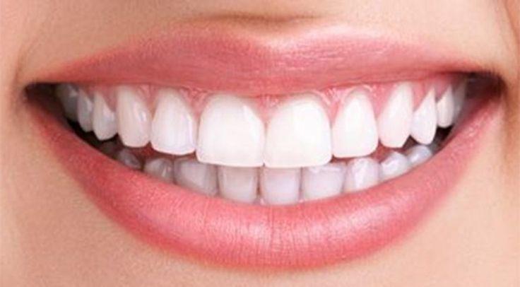 Blanchiment des dents naturel : comment avoir des dents vraiment blanches à la maison, sans se ruiner chez le dentiste ? On vous partage la solution.