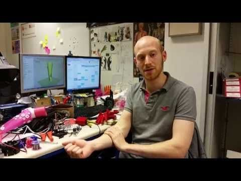 3D-Printed Hand Crafted In Days At Lower Cost Could Change Game For People With Disabilities - Open Bionics founder Joel Gibbard