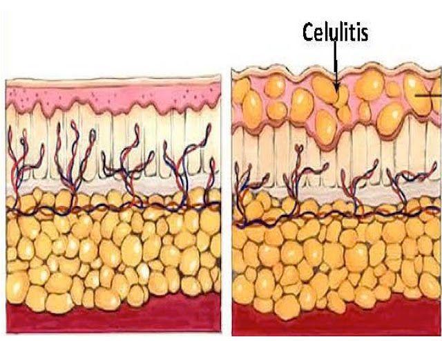 Todo sobre la celulitis infecciosa, mantenete alerta e informada!