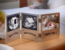 Triple Photo Frame Keepsake Baby Ultrasound Scan / Pregnancy Gift Silver  http://www.ebay.co.uk/itm/Triple-Photo-Frame-Keepsake-Baby-Ultrasound-Scan-Pregnancy-Gift-Silver-/252608704547?hash=item3ad0a6f023:g:ldMAAOSwB09YEyG8   Get This  Bargains That you can Get ! Visit  Our Shop  Right Now For the best  deals