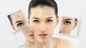 Un ghid complet pentru tratarea acneei in mod natural. | Naturissimo Blog