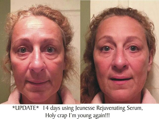 Luminesce results in 14 days, that's just 2 sample packs!