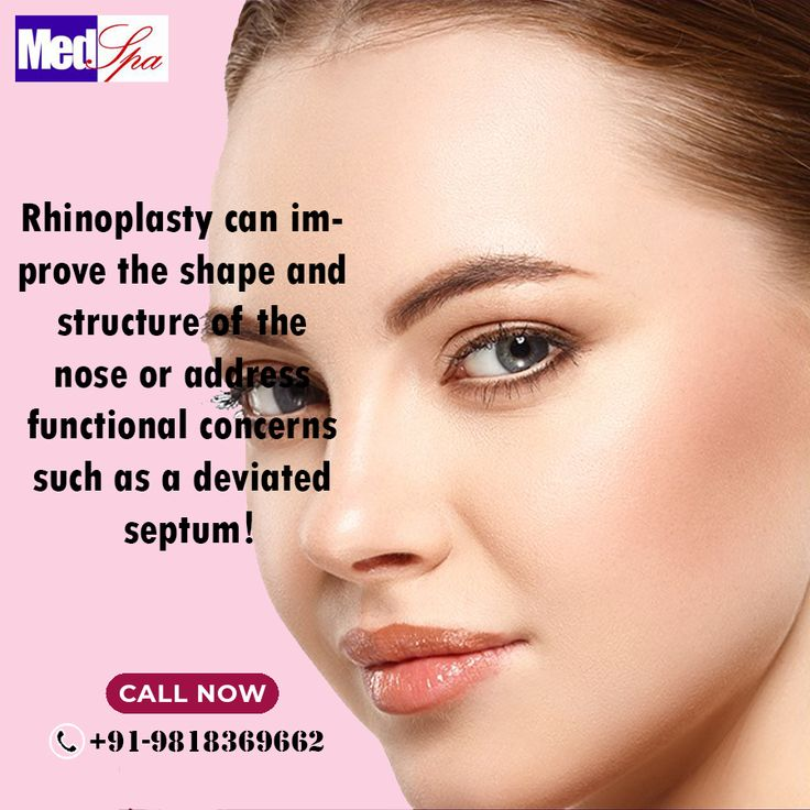 Rhinoplasty can improve the shape and structure of the