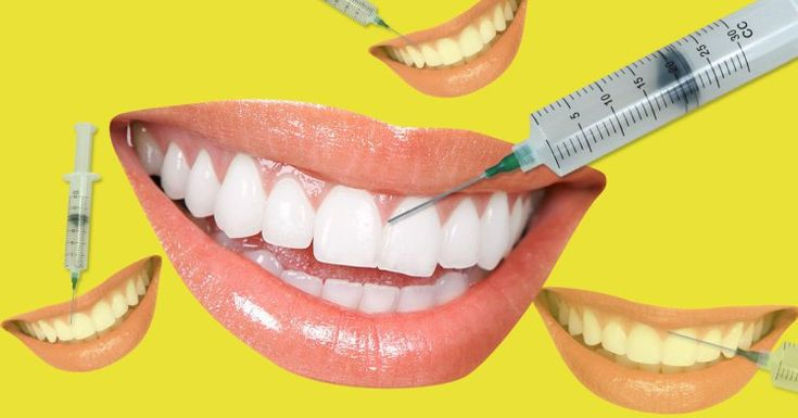 What you need to know about the risks of getting fillers in your gums