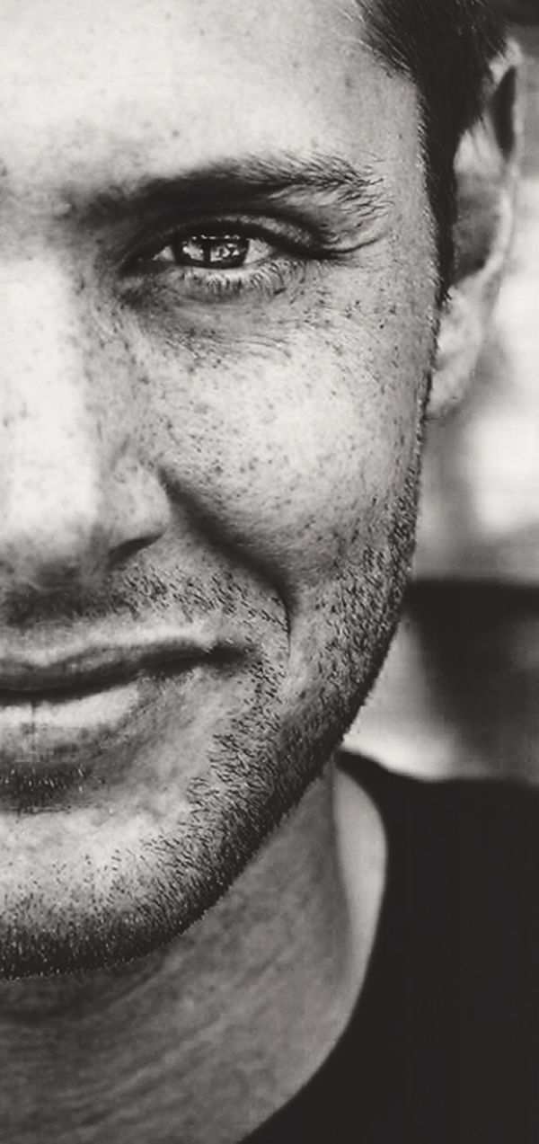 Ackles, freckles and crinkles. (Say that 10 times fast)
