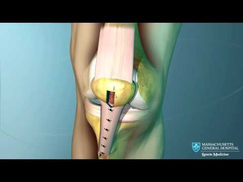 ▶ Anterior Cruciate Ligament (ACL) Reconstruction Animation - YouTube