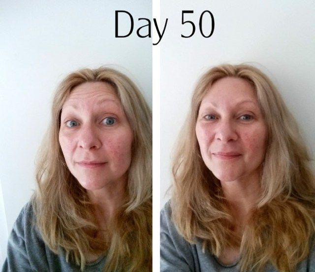rosacea treatment after day 50