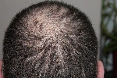 Male pattern baldness NW3v
